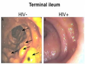 Diagnosis and Treatment of Acute HIV: A Stitch in Time?